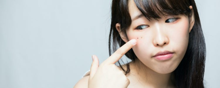 治療色斑有法